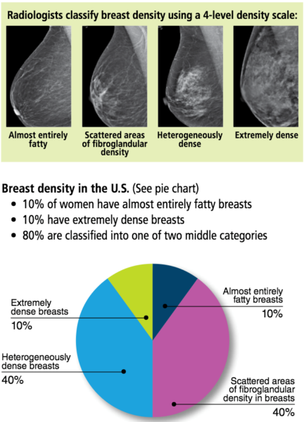 Are dense breasts heterogeneously